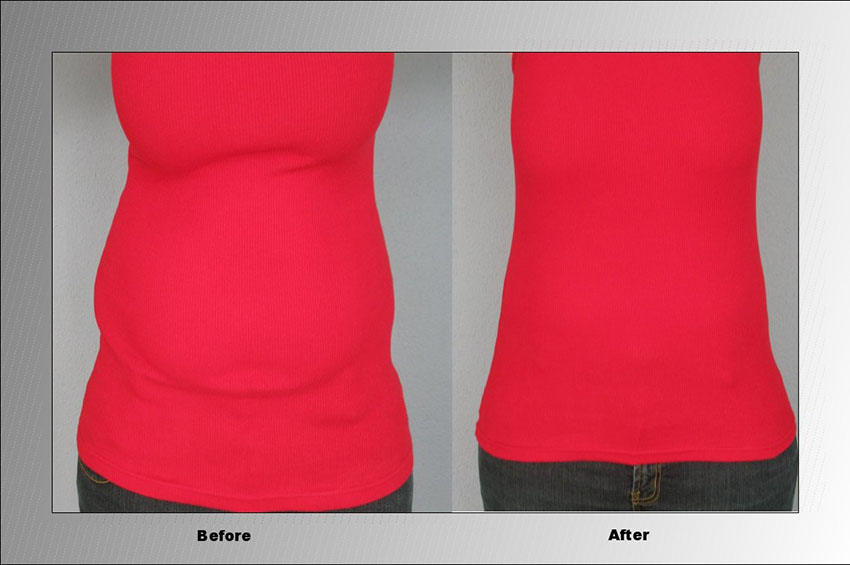 Skinnies Instant Lifts